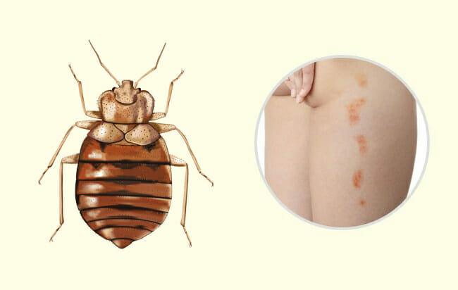 10 insectenbeten en steken die iedereen zou moeten leren. Black Bedroom Furniture Sets. Home Design Ideas